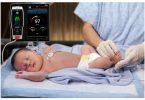 صعوبة التنفس عند الاطفال حديثى الولادة