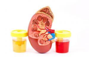 وجود دم فى بول الطفل الاعراض والاسباب والعلاج