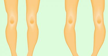 تشخيص وعلاج لين العظام عند الاطفال