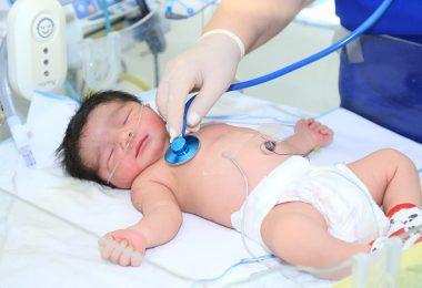 علاج الانتفاخ عند الرضع حديثى الولادة